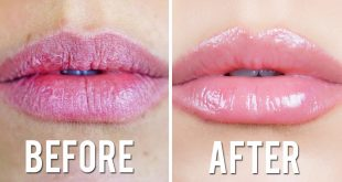 Get Rid of the Chapped Lips with these Six Best Ways