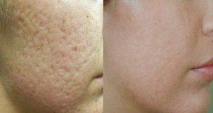 Five Effective Ways to Close Open Pores